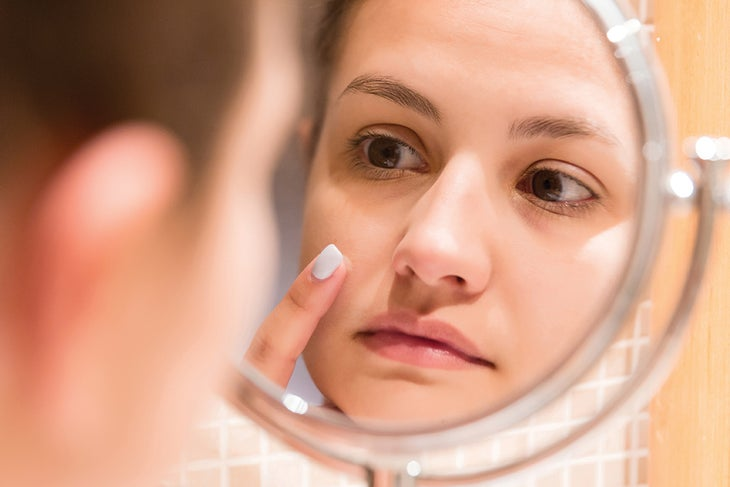 Woman treating pimple in the mirror